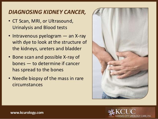 Kidney Cancer Faraja